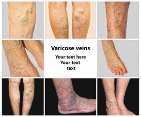 Collage from images of varicose veins