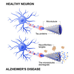 healthy cell and neurons with Alzheimer's disease. Tau hypothesis