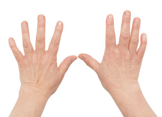 woman's hands with wrinkles