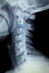 Spine neck Xray test scan