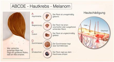 Hautkrebs.Melanom.ABCDE