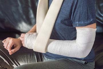 Arm in plaster - Braccio ingessato