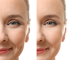 Mature woman face before and after cosmetic procedure. Plastic surgery concept.