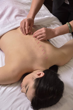 Acupuncture Back View Chinese Medicine