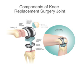 Components of knee replacement surgery joint.