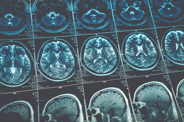 MRI or magnetic resonance image of head and brain scan. Close up view