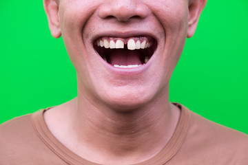 Asian man smiling showing his teeth unattractive on green background. Selective focus.