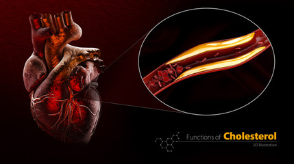 Blocked blood vessel, artery with cholesterol buildup, 3d Illustration isolated black