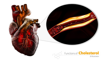 Blocked blood vessel, artery with cholesterol buildup, 3d Illustration isolated white