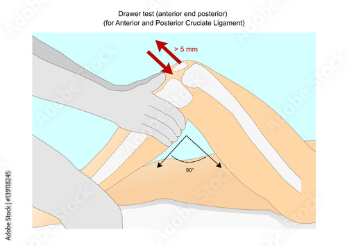 Drawer Test To Check The Integrity Of The Anterior And Posterior Cruciate Ligament Of The