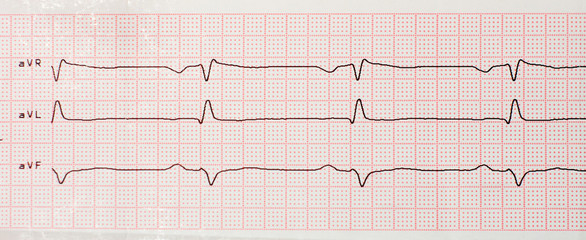 Results of cardiogram on sheet of paper