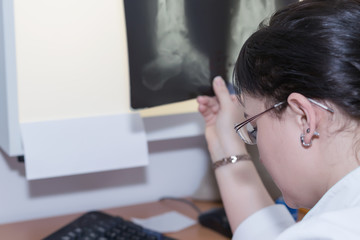 Brunette female doctor examining an x-ray. Selective focus
