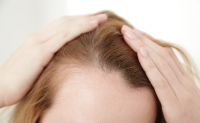 Young woman with hair loss problem on light background, closeup