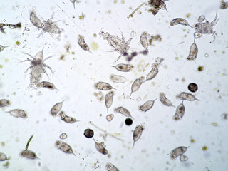Freshwater aquatic plankton under microscope view