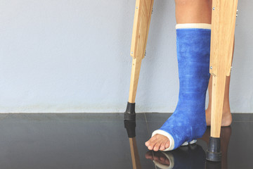 broken leg in a plaster cast with soft-focus in the background. over light