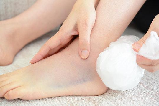 捻挫した女性の足