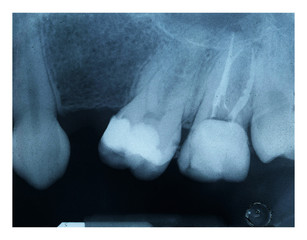 X-ray of dental Filling and devitalization