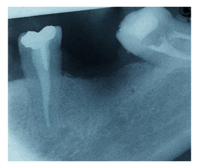 x-rays of a dental fillings and missing tooth