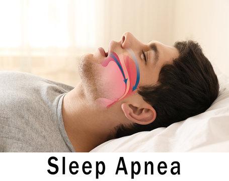 Snore problem concept. Illustration of obstructive sleep apnea