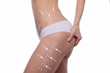 Female body with the arrows drawing on it. Fat lose, liposuction and cellulite removal concept. Sport, fitness, Dieting results.
