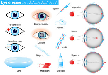 human eye diseases and disorders. Infographic