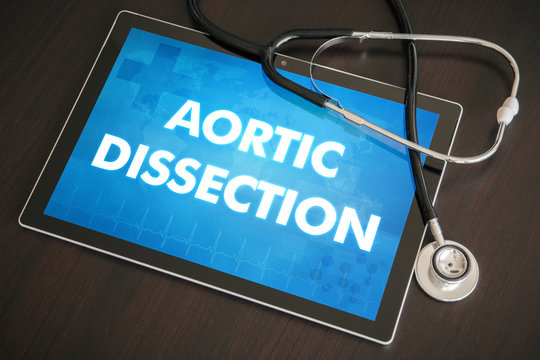 Aortic dissection (heart disorder) diagnosis medical concept on tablet screen with stethoscope