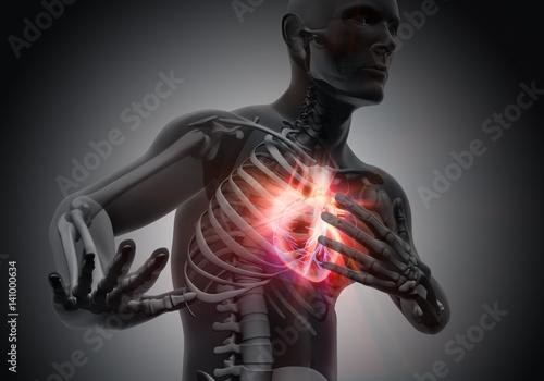 Akuter Herzinfarkt - Grau\
