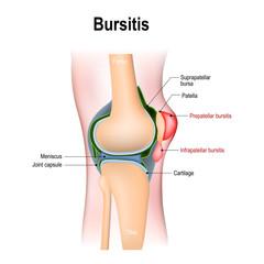 Bursitis is the inflammation of bursae