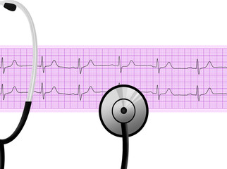 Stethoscope on heartbeat graph (cardiogram)