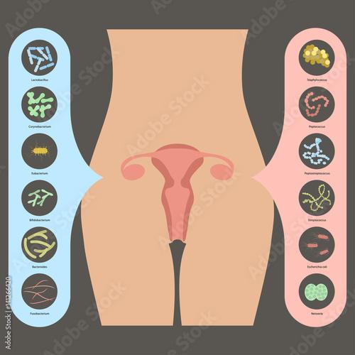 Bacteria in vagina 6