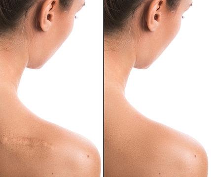 Result after procedure of scar removing