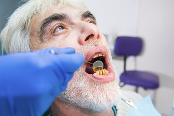 Senior man with bad teeth. Hand holding dental mirror. How to cure caries.