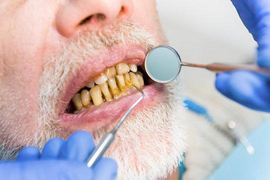 Mouth mirror and bad teeth. Close up of dental examination.