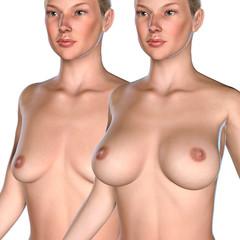 3d illustration Breast Enlargement concept