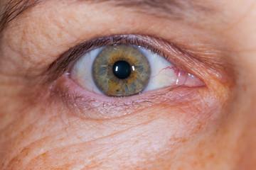 Elderly female's green eye