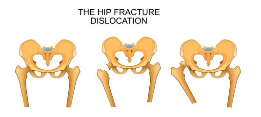 pelvis, hip fracture. hip dislocation