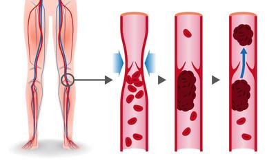 Economy class syndrome mechanism, deep vein thrombosis(DVT), Pulmonary Embolism(PE), coronary thrombosis, illustration diagram