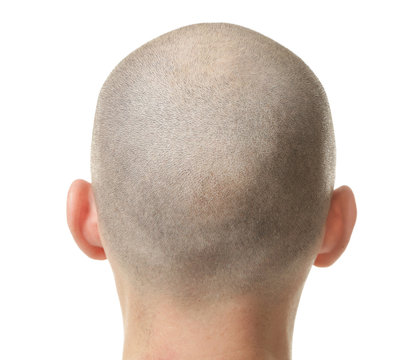 Hair loss concept. Head of man on white background, closeup