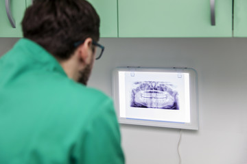 Dentist analyzing x-ray of teeth