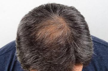 man with hair loss and grey hair.