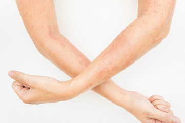 Skin rashes, allergies contact dermatitis ,allergic to chemicals ,fungal infections from exposure