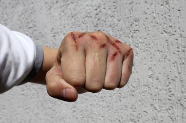 Damaged hands