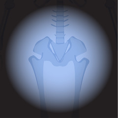 X ray hips. Human skeleton's part on black background.