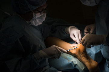 Surgeons making an Achilles tendon operation
