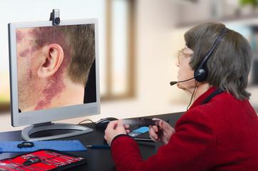 Telemedicine dermatologist examines red big birthmark