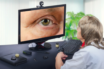Telemedicine ophthalmologist observes eyelid cyst on computer