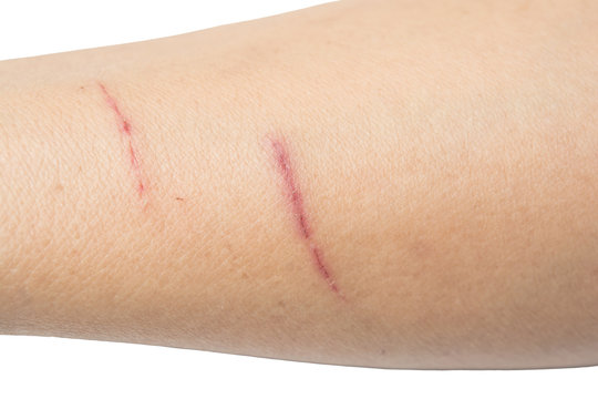 Scratches on the arm