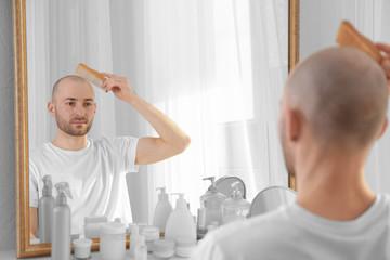 Hair loss concept. Young man looking at mirror