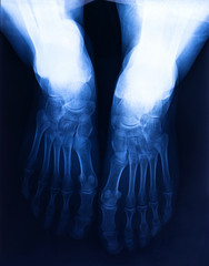 X-ray human's ankle with arthritis , top view.