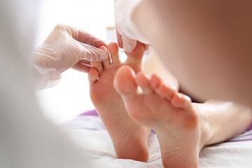 Dermatolog. Lekarz leczy stopy pacjentki